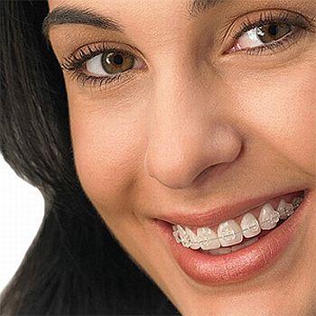Aparelho Dental Movel Preços Aparelho Dental Móvel Preços