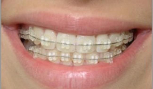 Aparelho Odontológico Preços Valores e Clinicas Aparelho Odontológico, Preços Valores e Clínicas