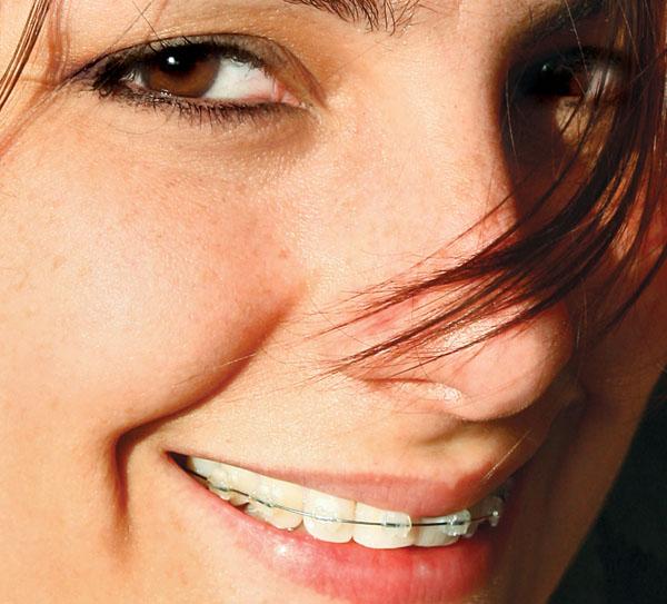 Aparelho Odontológico Preços Valores e Clinicas3 300x271 Aparelho ...