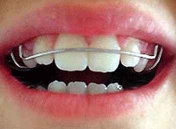 Aparelho Odontológico Removivel – Modelos Aparelho Odontológico Removível – Modelos