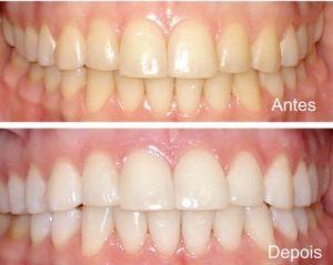 Clareamento Dental a Laser o que Não Pode Comer Clareamento Dental a Laser   O que não Pode Comer