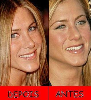 antesedepois1 Cirurgia de Rinoplastia Preço, Antes e Depois