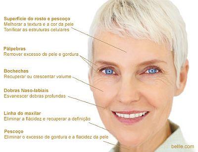 lifting Tratamento de Lifting Facial, Preços, Como Funciona
