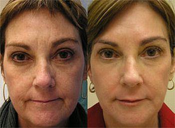 rejuvenescimento2 Rejuvenescimento Facial a Laser Preços, Fotos