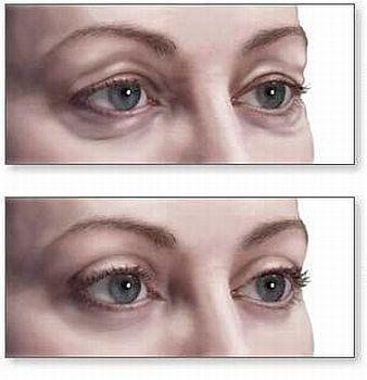 Cirurgia Plastica na area dos Olhos Blefaroplastia Cirurgia Plástica na Área dos Olhos, Blefaroplastia