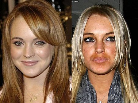 Cirurgia de Botox Antes e Depois Fotos Cirurgia de Botox Antes e Depois, Fotos