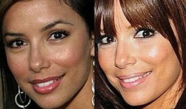 botox1 Cirurgia de Botox Antes e Depois, Fotos