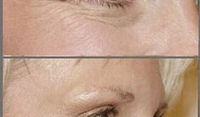 botox2 Cirurgia de Botox Antes e Depois, Fotos