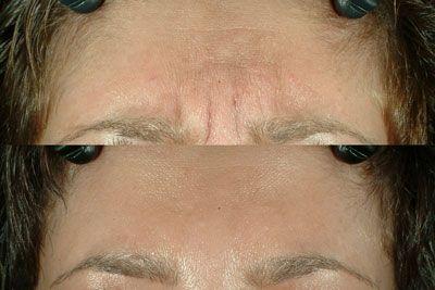 botox3 Cirurgia de Botox Antes e Depois, Fotos