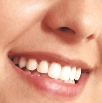 Implante Dentario Preco Medio Implante Dentário Preço Médio
