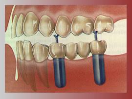 quanto custa implante dentario Quanto Custa um Implante Dentário