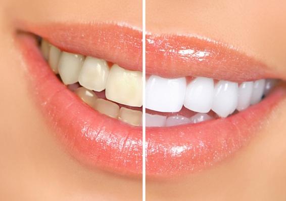 Solução para Dentes Amarelos