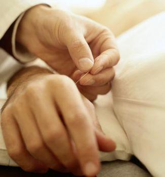 Acupuntura para Ansiedade Pontos Beneficios Acupuntura para Ansiedade, Pontos, Benefícios