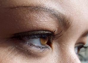 1 Olhos1 Cirurgia Para Retirada de Carne nos Olhos