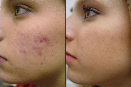 Melhor remédio para acne1 Melhor Remédio Para Acne