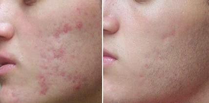 acne cicatriz tratada Peeling Químico Preço