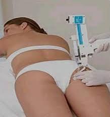 intradermoterapia Melhores Tratamentos para Gordura Localizada