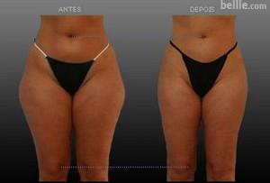 lipo1 Lipocavitação Preço, Fotos Antes e Depois