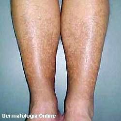 manchas pernas tratamentos1 Tratamentos para Manchas nas Pernas