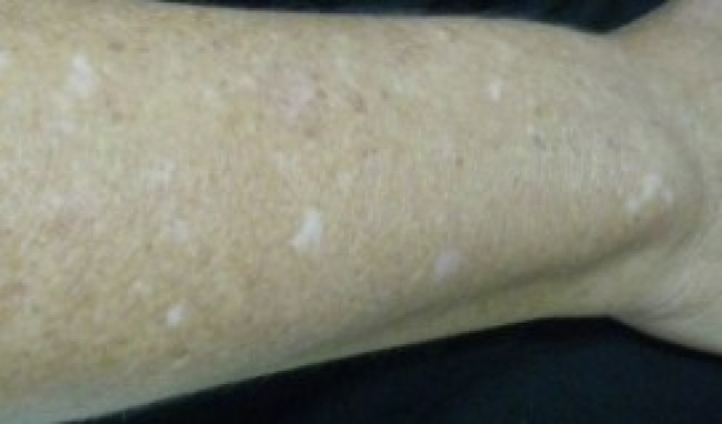 manchas pernas tratamentos2 Tratamentos para Manchas nas Pernas