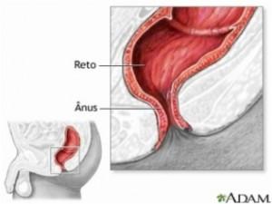 Hemo 3 300x225 Novo Método para Cirurgia de Hemorroidas