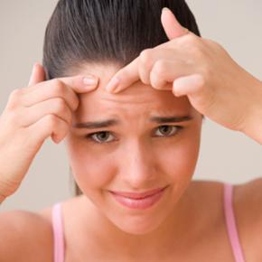 acne3 Como Ter Uma Pele Bonita e Livre e Acne, Dicas