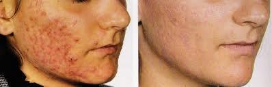 efeitos do roacutan na pele4 Efeitos do Roacutan na Pele